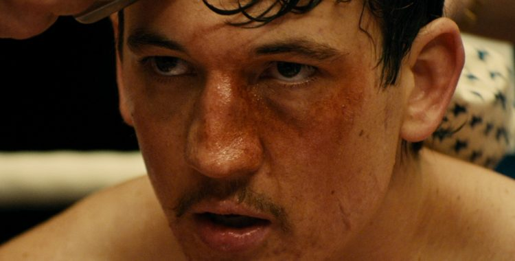 Bleed For This or, What's Your Excuse?